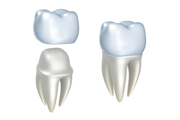 Are Dental Crowns And Dental Caps The Same?